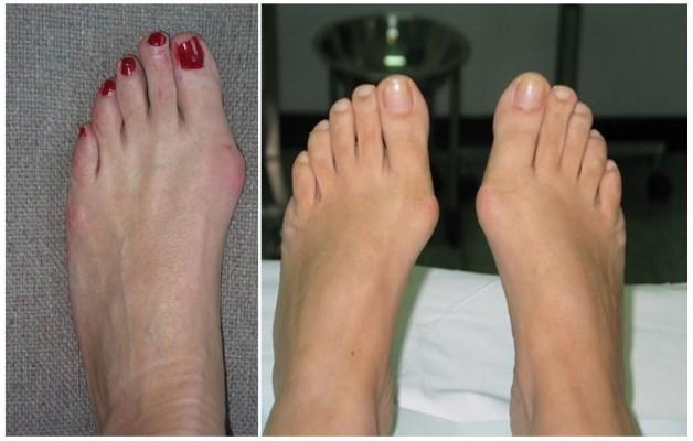 При псориатическом артрите чаще всего поражается один сустав