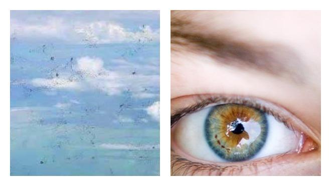Пятна перед глазами чаще всего появляются при смене артериального давления