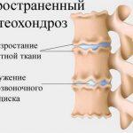 Распространённый остеохондроз