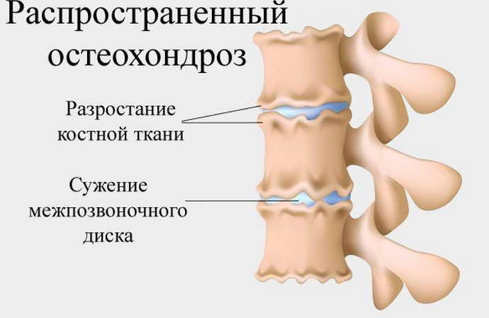 Распространённый остеохондроз - заболевание, которое чаще всего встречается после 40 лет