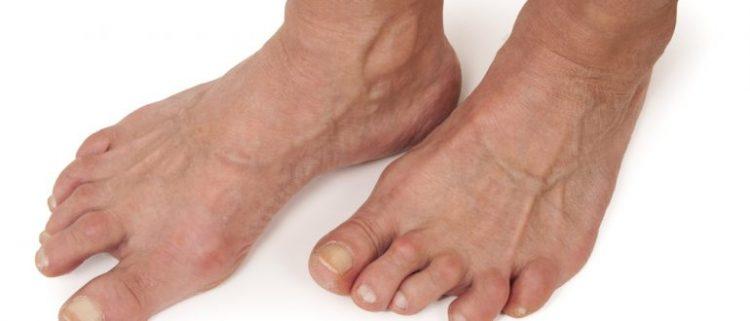 Реактивный артрит чаще всего встречается в молодом возрасте