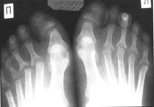 Рентген - один из методов диагностики