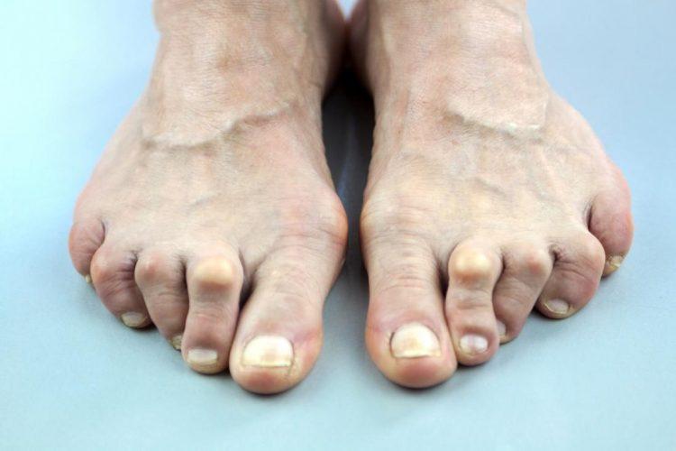 Ревматоидным артритом чаще страдают женщины