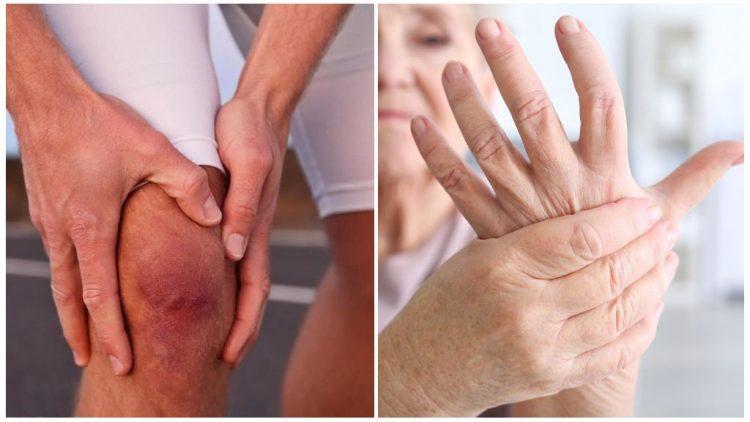 Ревматоидный артрит - патология, которая сопровождается дискомфортными ощущениями с суставах