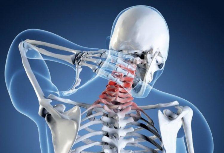 Шейный остеохондроз - очень распространенное явление