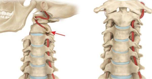 Синдром Баре Льеу может привести даже к потере сознания