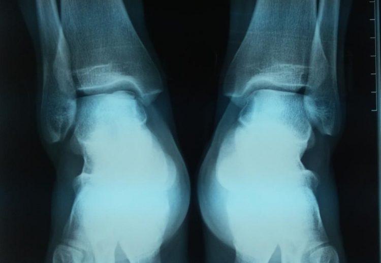 Как выглядит патология на рентгеновском снимке