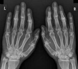 Рентгенография - один из методов исследования болезни