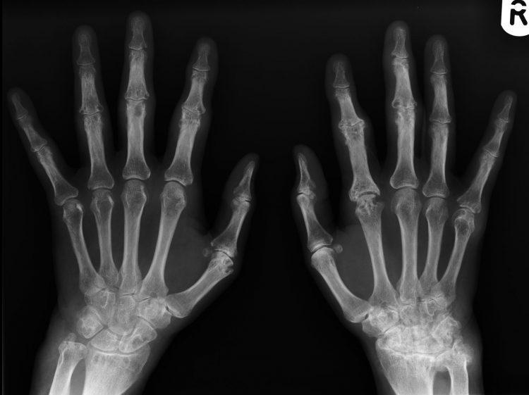 Снимок рентгена при серонегативном артрите