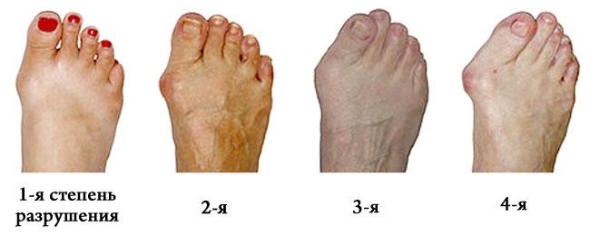 Специалисты выделяют 4 стадии артрита