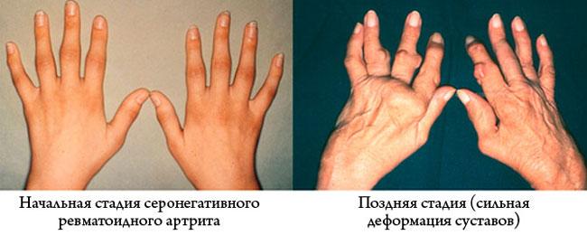 Специалисты выделяют 4 стадии развития недуга