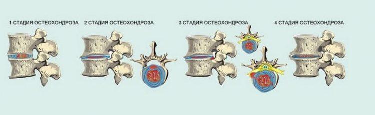 Специалисты выделяют 4 стадии развития остеохондроза