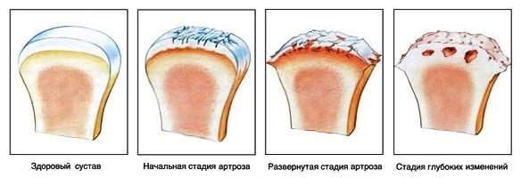 Специалисты выделяют 4 стадии развития заболевания