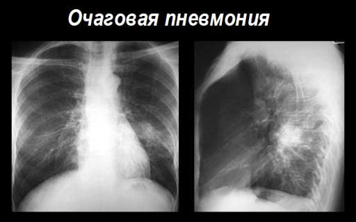 Полисегментарная двусторонняя пневмония: причины развития болезни, симптоматика, клиническая картина, диагностические исследования, способы лечения, меры профилактики
