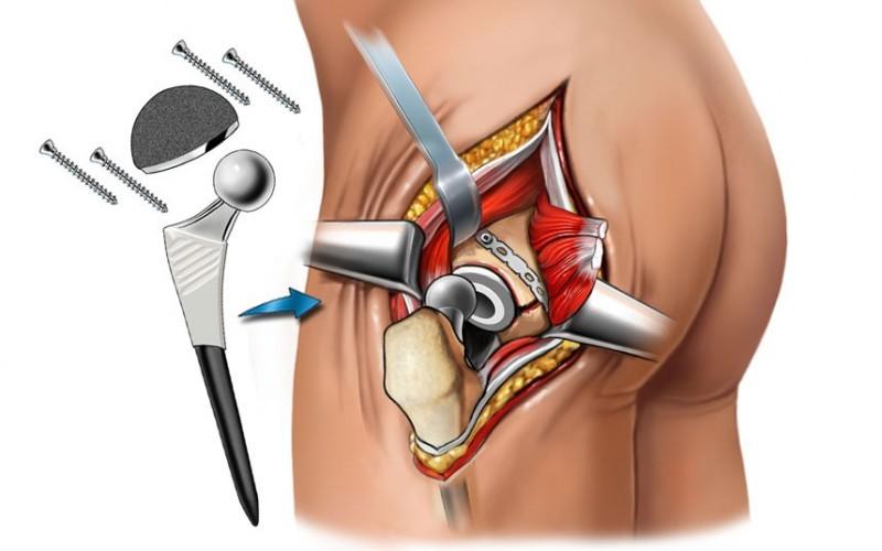 Диспластический коксартроз тазобедренного сустава симптомы и лечение