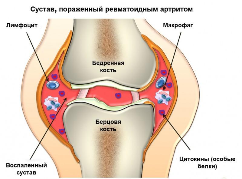 Правила диетического питания при лечении псориатического артрита