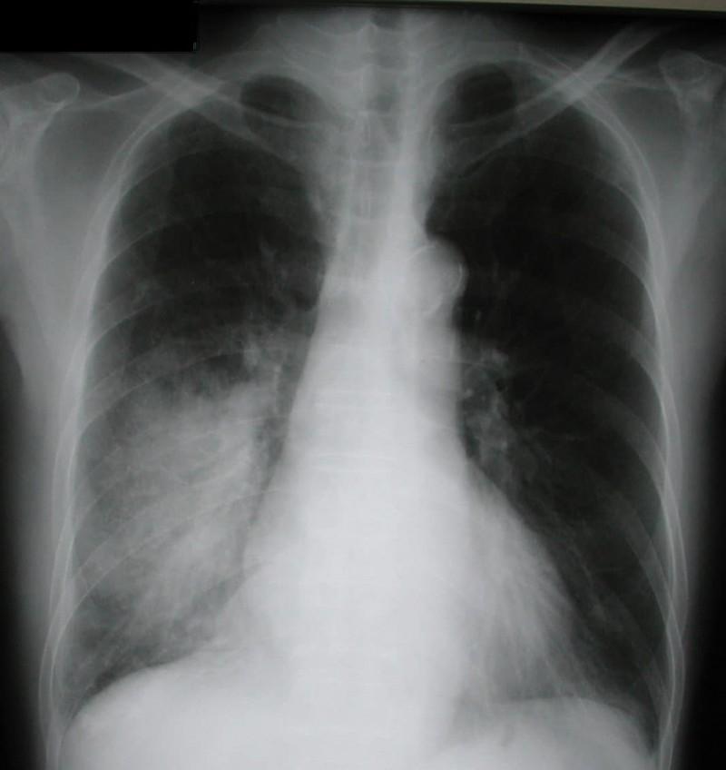 Что такое рентген и зачем он нужен человеку