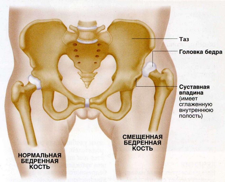 Вывихи тазобедренных суставов лечение