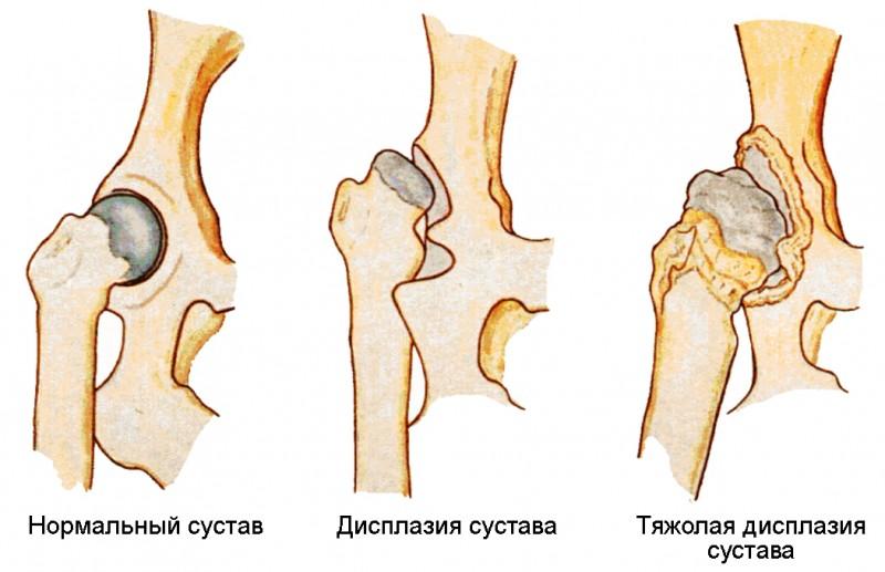 Вывих тазобедренного сустава у малыша